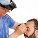 How for the greatest Hair Surgery Doctors