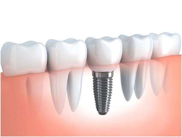 Improve Your Smile And Your Confidence By Getting Dental Implants.